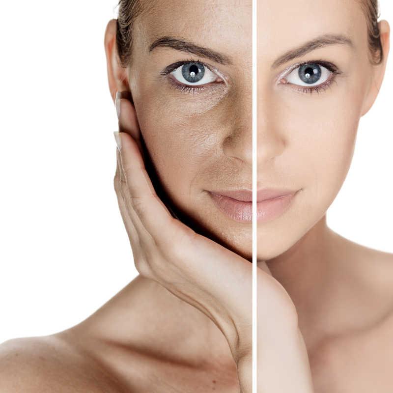 皮肤去皱嫩白前后对比