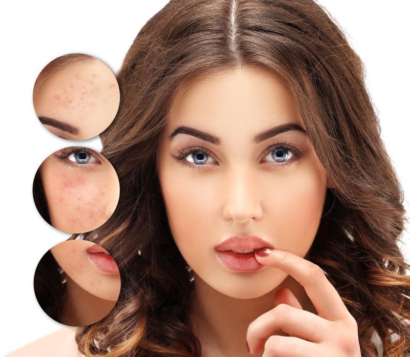 皱纹治疗图片素材_美女的皮肤皱纹治疗前后的对比图