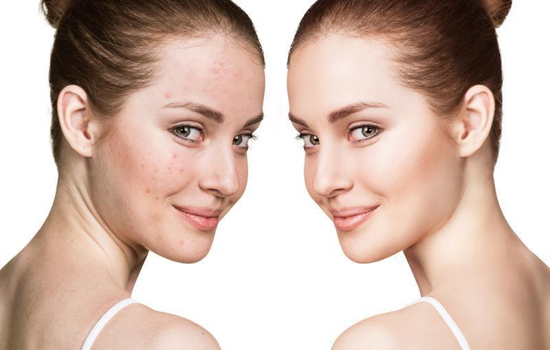 美女干性皮肤前后护理