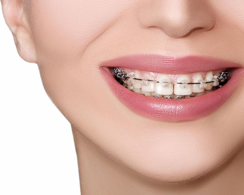 牙齿图片素材_美丽的年轻女人带着牙齿撑着宽阔的微笑