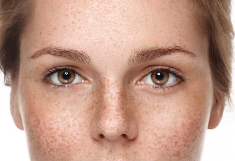 满脸雀斑的女人的棕色眼睛