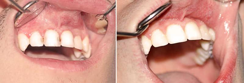 治疗前后的牙齿