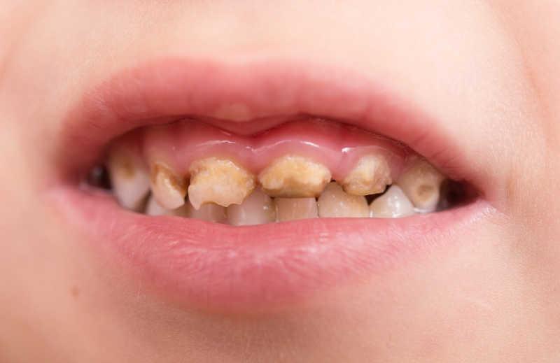 难看的牙齿