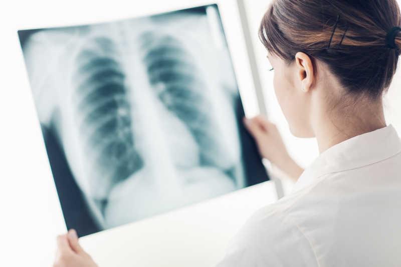 女医生检查病人的肺部和肋骨X线