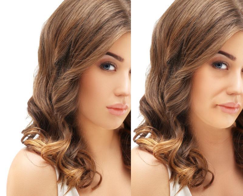 美女脸部皮肤治疗前后的对比