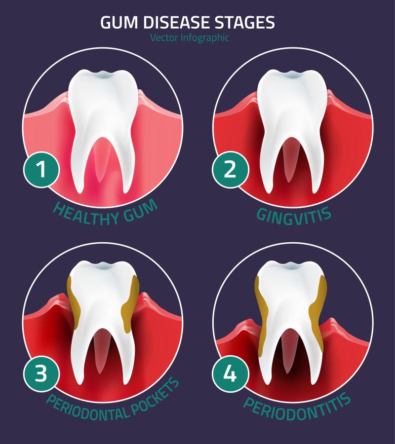 抽象矢量牙齿疾病的分期示意图