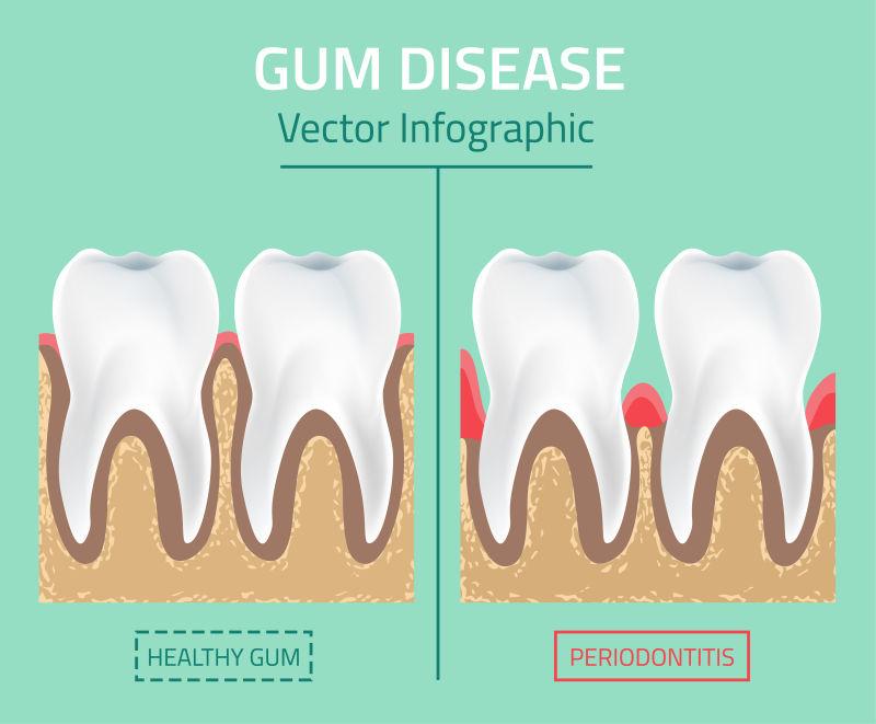 创意矢量牙齿疾病对比的插图