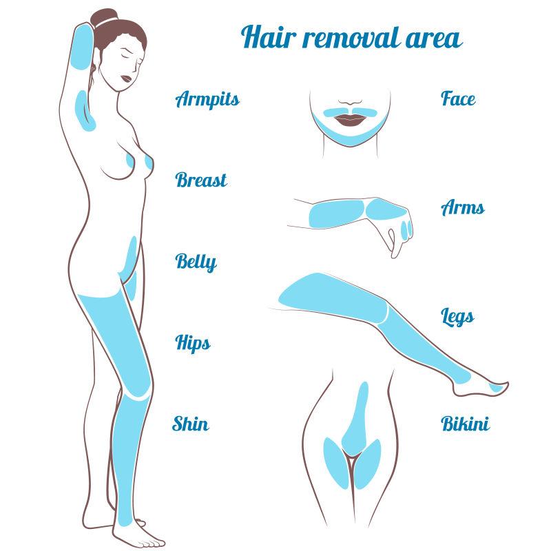 矢量女性全身不同区域的脱毛展示