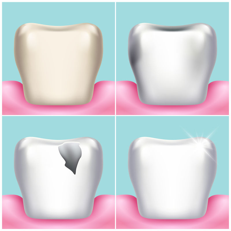 牙齿问题、龋齿、牙菌斑和牙龈疾病、健康牙齿载体说明