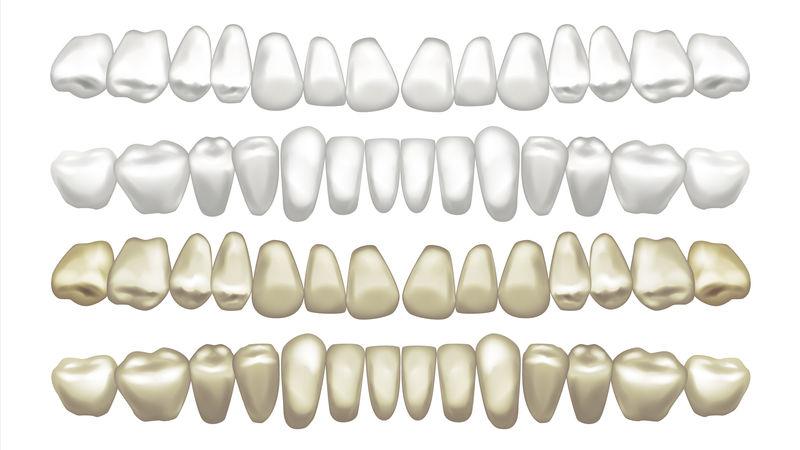牙齿美白载体。之前和之后。牙齿贴面美白。独立插图