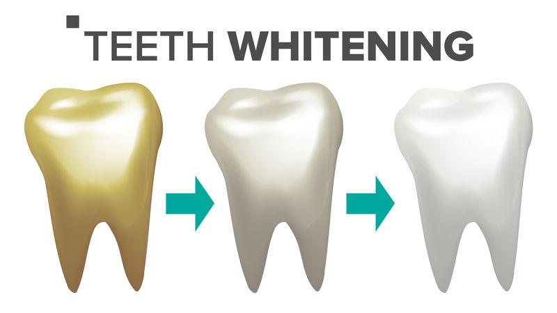 牙齿美白载体。牙齿和牙齿牙齿概念。医疗保健。逼真的独立插图