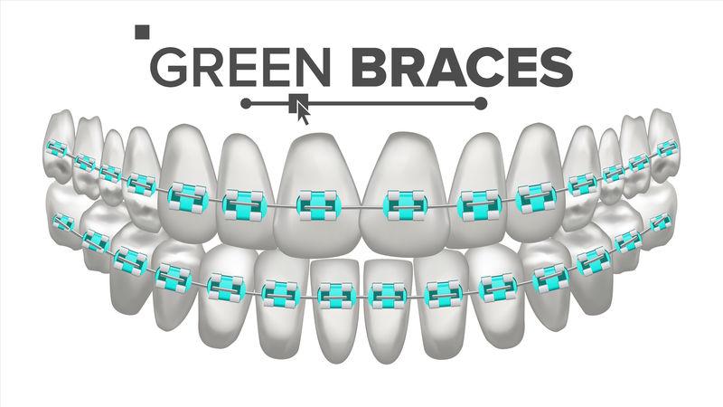 绿色子括号向量。牙齿和牙套。人类的下巴。三维真实独立插图