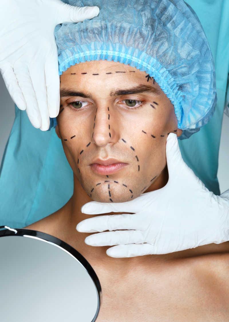 整容男子脸上画着手术标记线