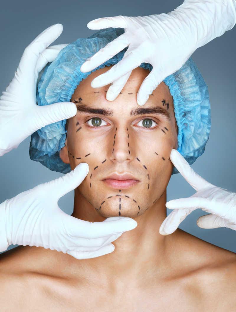 整容医生为病人在脸上手术标记线